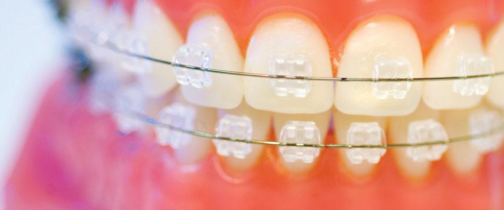 Nicht-komfortablen orthodontischen Geräten